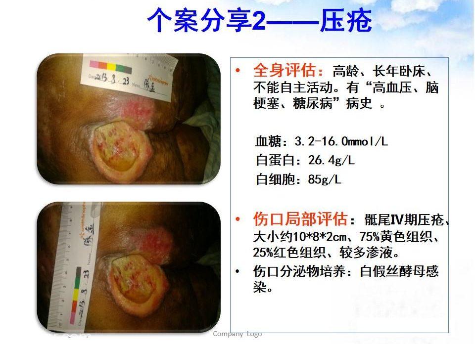 慢性伤口分享 (8)