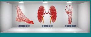 高血糖与微血管的变化