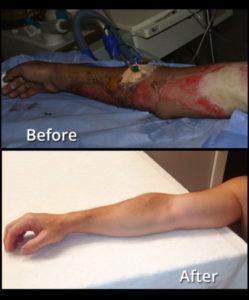烧伤皮肤枪治疗前后对比