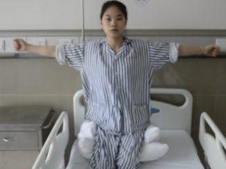 截瘫并坐骨结节处压疮病人治疗五步法