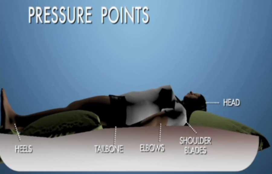 压力性溃疡预防-治疗脊髓损伤后的医疗并发症3-2