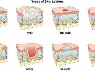 图文详解皮肤(黏膜)溃疡