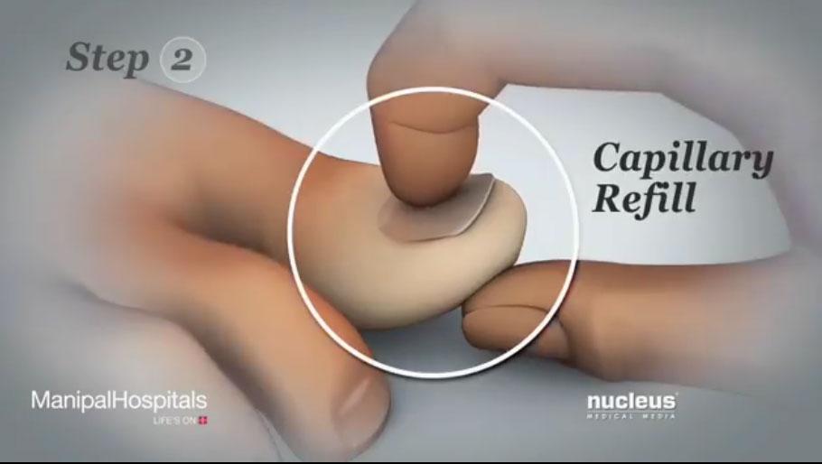 视频教你如何检查腿部血流量