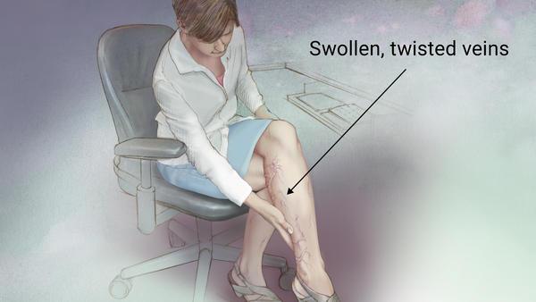 静脉曲张对皮肤的危害及治疗
