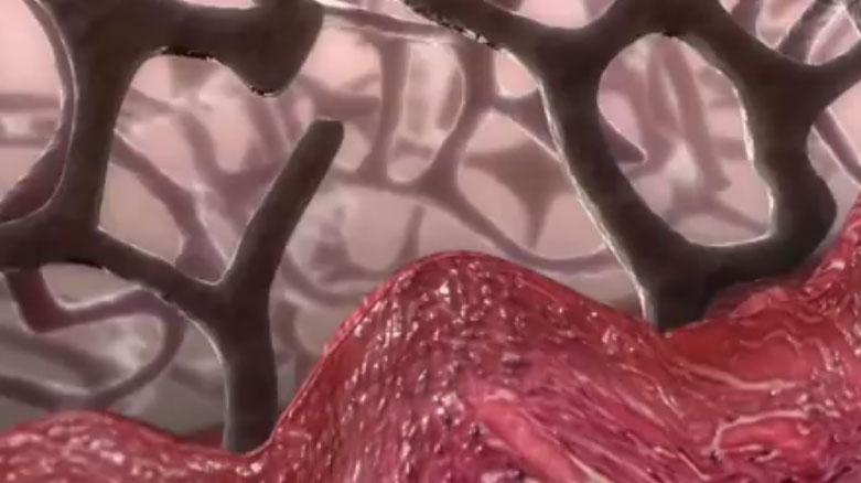 V.A.C.治疗机制视频教程