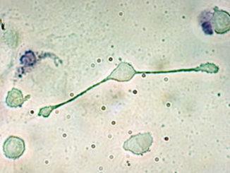 一个位于老鼠体内的巨噬细胞,正在延伸其假足以吞没两粒可能是病原体的颗粒