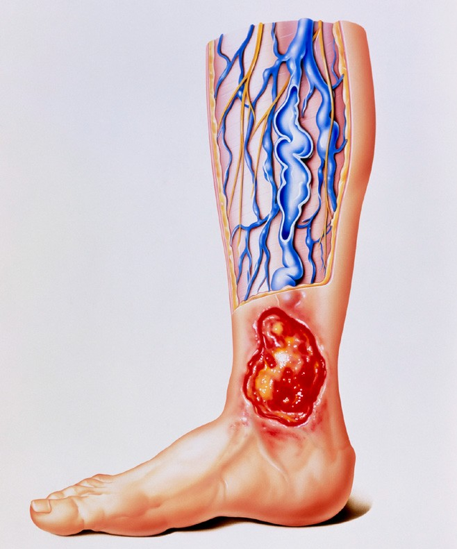 慢性静脉性溃疡(CVI)的发病机理