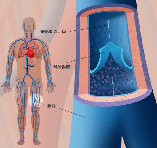 静脉瓣膜是如何工作的